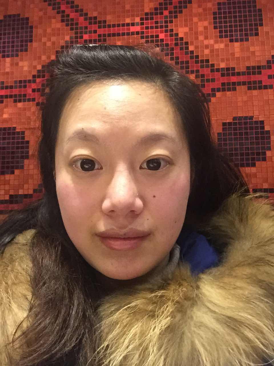 女人眉毛少是什么原因,有没有什么办法解决比较好