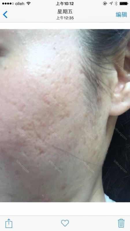 青春痘痕怎么祛除,青春痘痕!年轻的时候,脸上起的痘痘,粉刺,看着难受,没事儿就用手挤挤,还觉得挺好玩,挤出来白白的皮质。有没有同感??