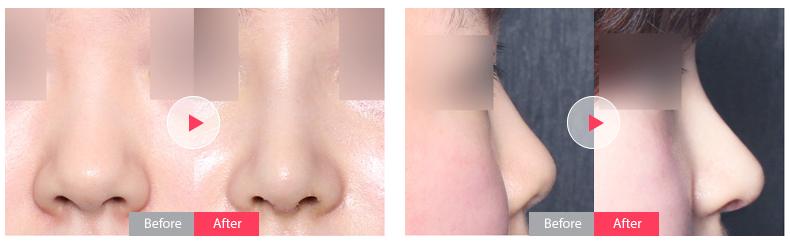 韩国鼻部整形手术,韩国美佳整形医院鼻部整形
