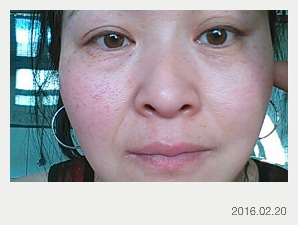 面部年轻态提升术是什么,提一下就是年轻啊