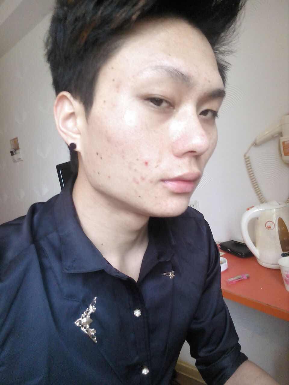 敏感性皮肤怎么修复,不知道要怎么整才好,做个果酸换肤,一个疗程,痘痘也没有好,毛孔弄的比以前更大了。