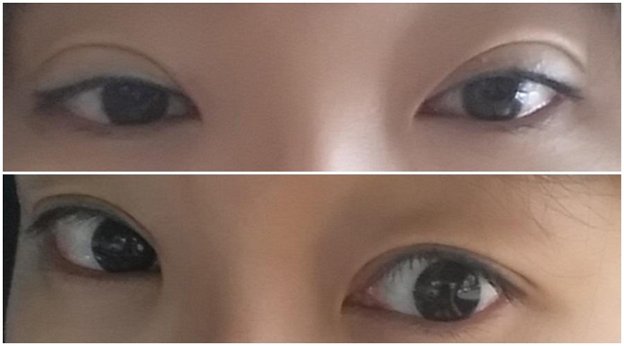 韩国双眼皮修复怎么样,韩国美佳整形医院柳元敏院长双眼皮修复手术