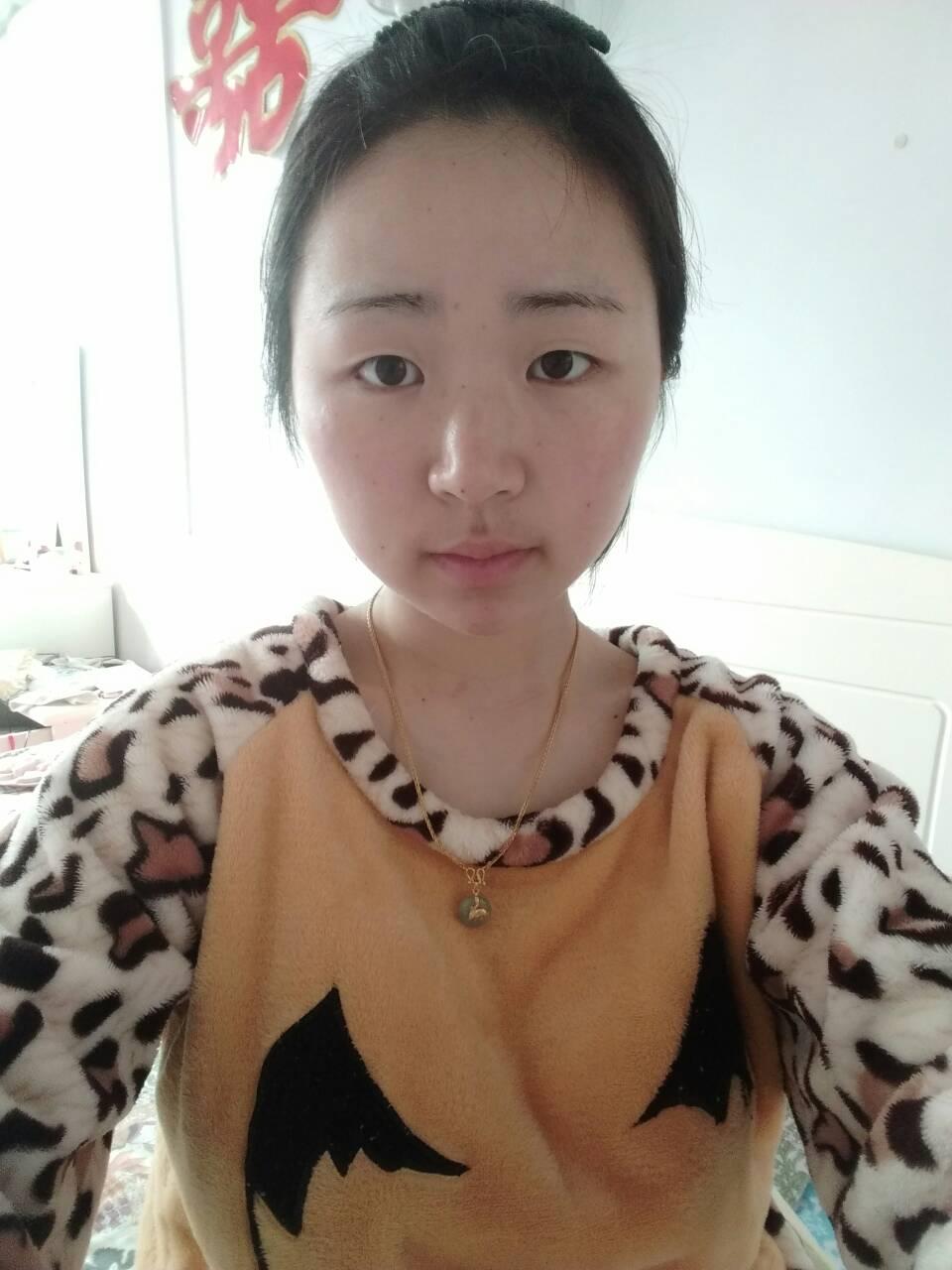 全割扇形双眼皮怎么样,想动眼睛,该做个平行的,还是扇形的?全切的?或者韩式的呢?这个脸型做了会好看么