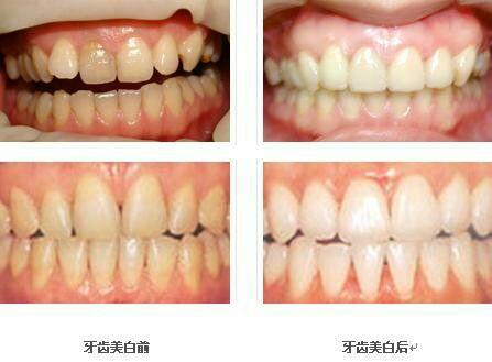 超声波洁牙的原理是什么,超声波洁牙前后对比图