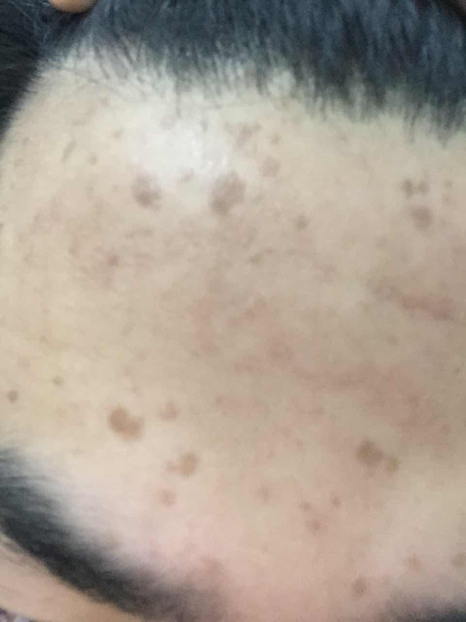 面部有很多痘印怎么办,额头上有的是小时候起水痘扣坏的后来形成的,有的是长痘留下的痘印,请问怎么能改善一些?