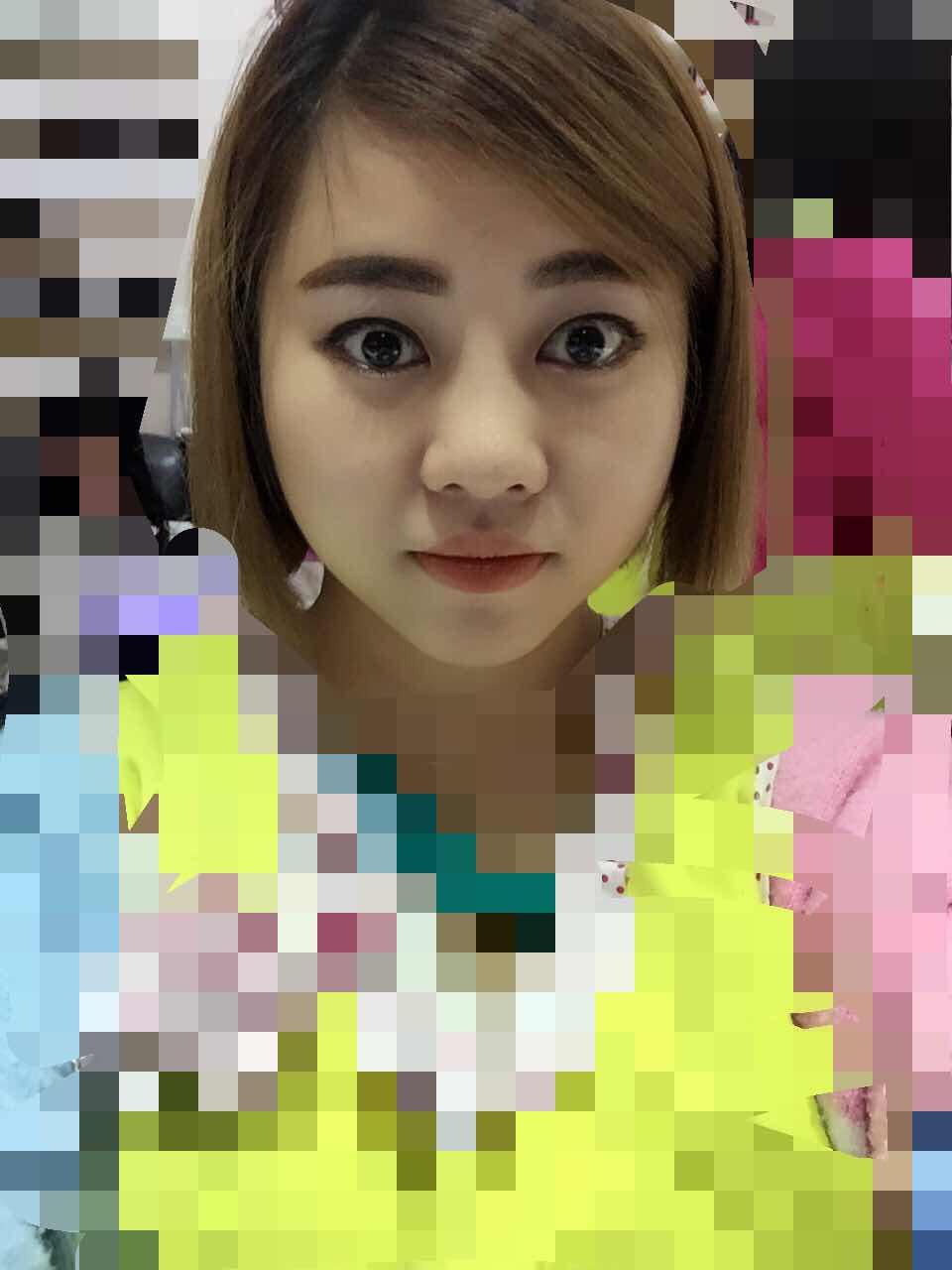 韩式综合美鼻怎么样,我需要整哪些地方啊,想把双眼皮做大点,开个眼角,综合美鼻,大概要多少钱哟,