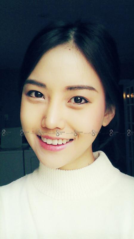 韩国vline手术我因为不满自己的脸型在A特整形医院实施了V-LINE轮廓整形手术,之前的我是一个名副其实的方脸