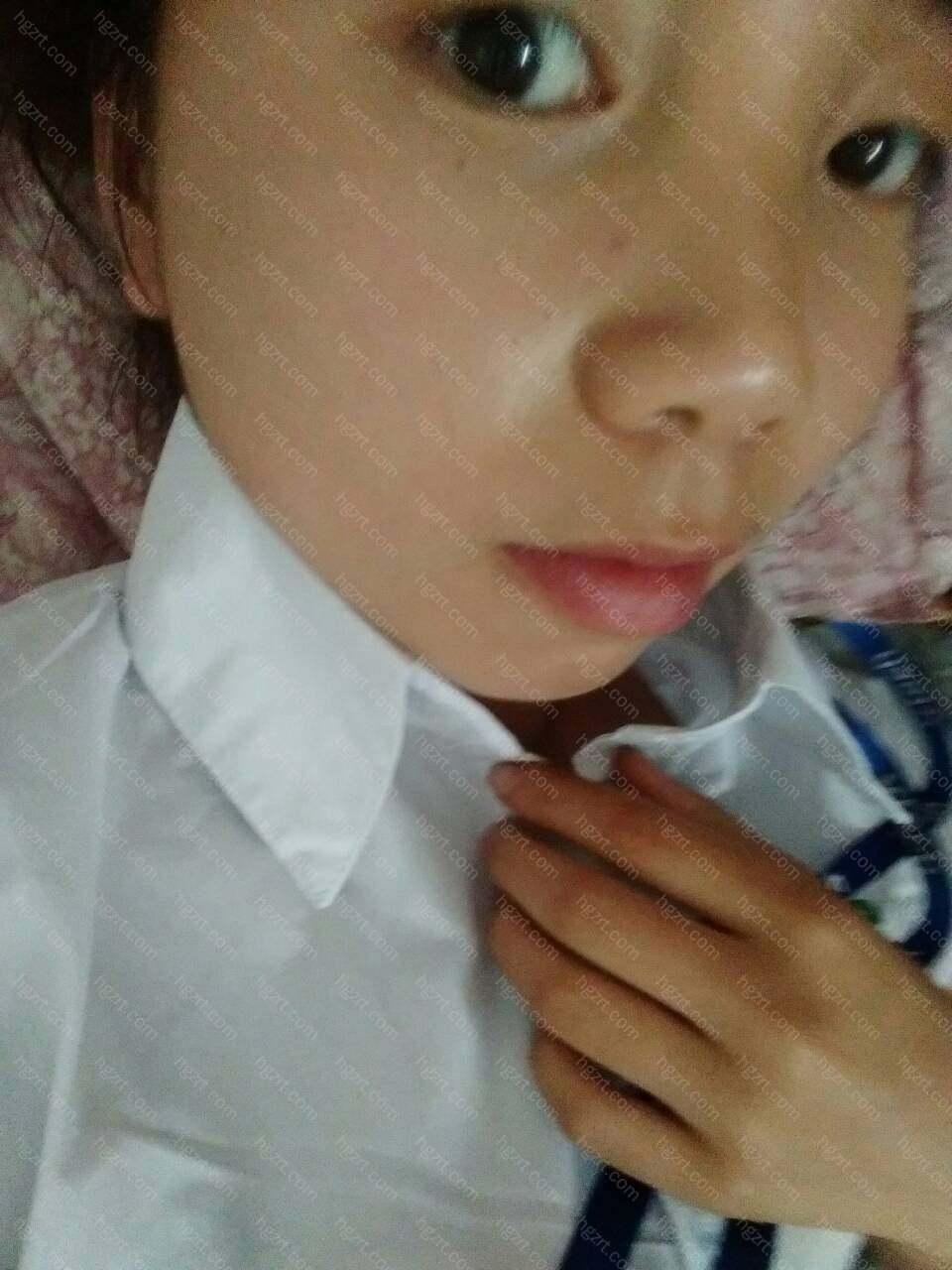 鼻唇颏的协调关系是面部侧貌美学的主要特征