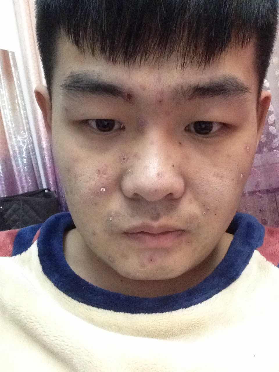隆鼻假体取出来方便吗,我想弄双眼皮开眼角。隆鼻 改脸型。脸上是水痘 刚好的时候。