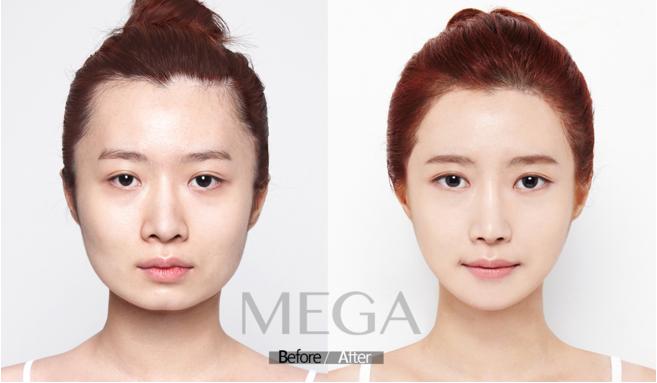 面部轮廓整形专家,美佳漂亮女孩登场了,这是一位来自美佳的模特,做了面部轮廓鼻子,眼睛,脂肪移植的她,她的变身很成功