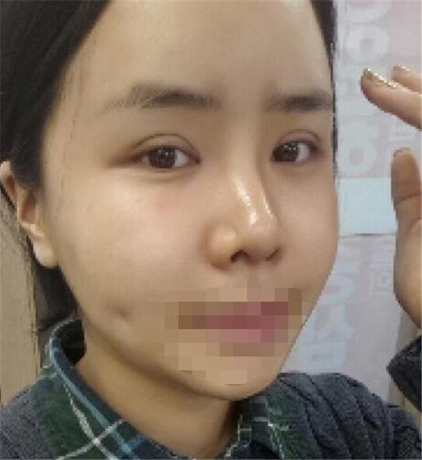 颜面轮廓+双眼皮+开眼角+额头手术效果案例,做了这么多变化真的很大