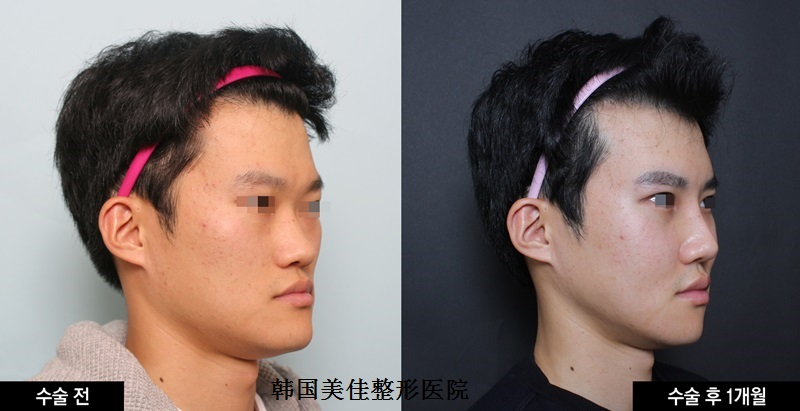 韩国面部轮廓手术前后对比照,颧骨+下颌角+Vline