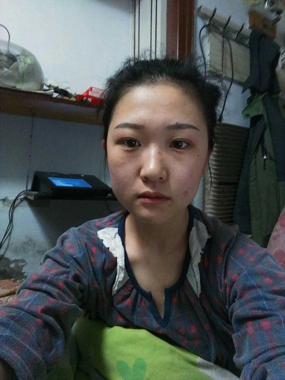 下颌角瘦脸手术怎么办,我想瘦脸,隆鼻