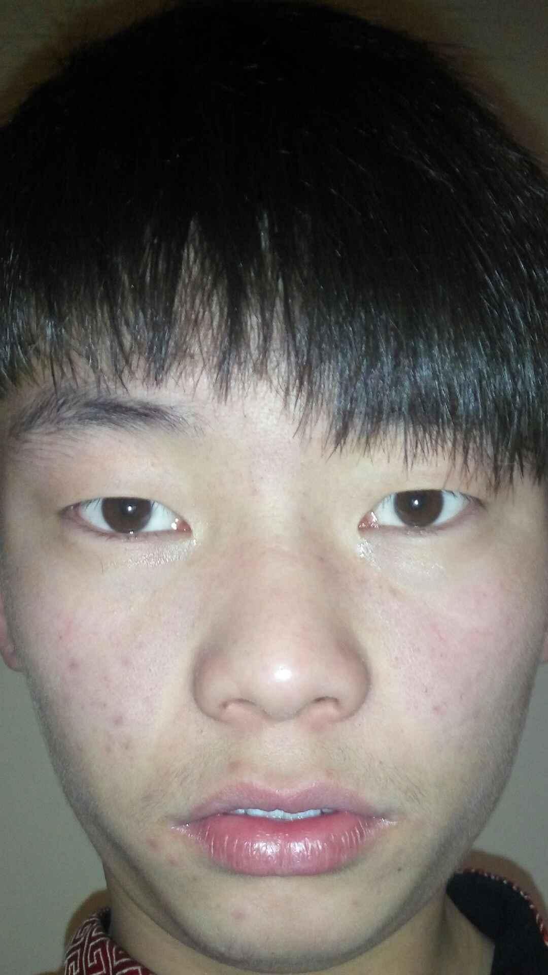 假体硅胶加耳软骨隆鼻怎么样,我该怎么改善,怎么整能变的帅气?