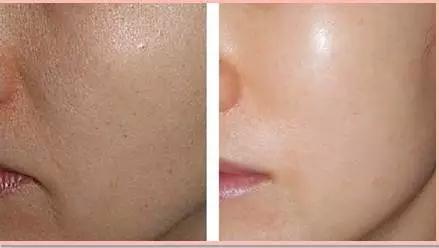 水光针效果图前后对比,这是水光术注射苹果肌的前后对比效果,皮肤好像突然之间喝饱了水。是不是感觉水嫩多了?!