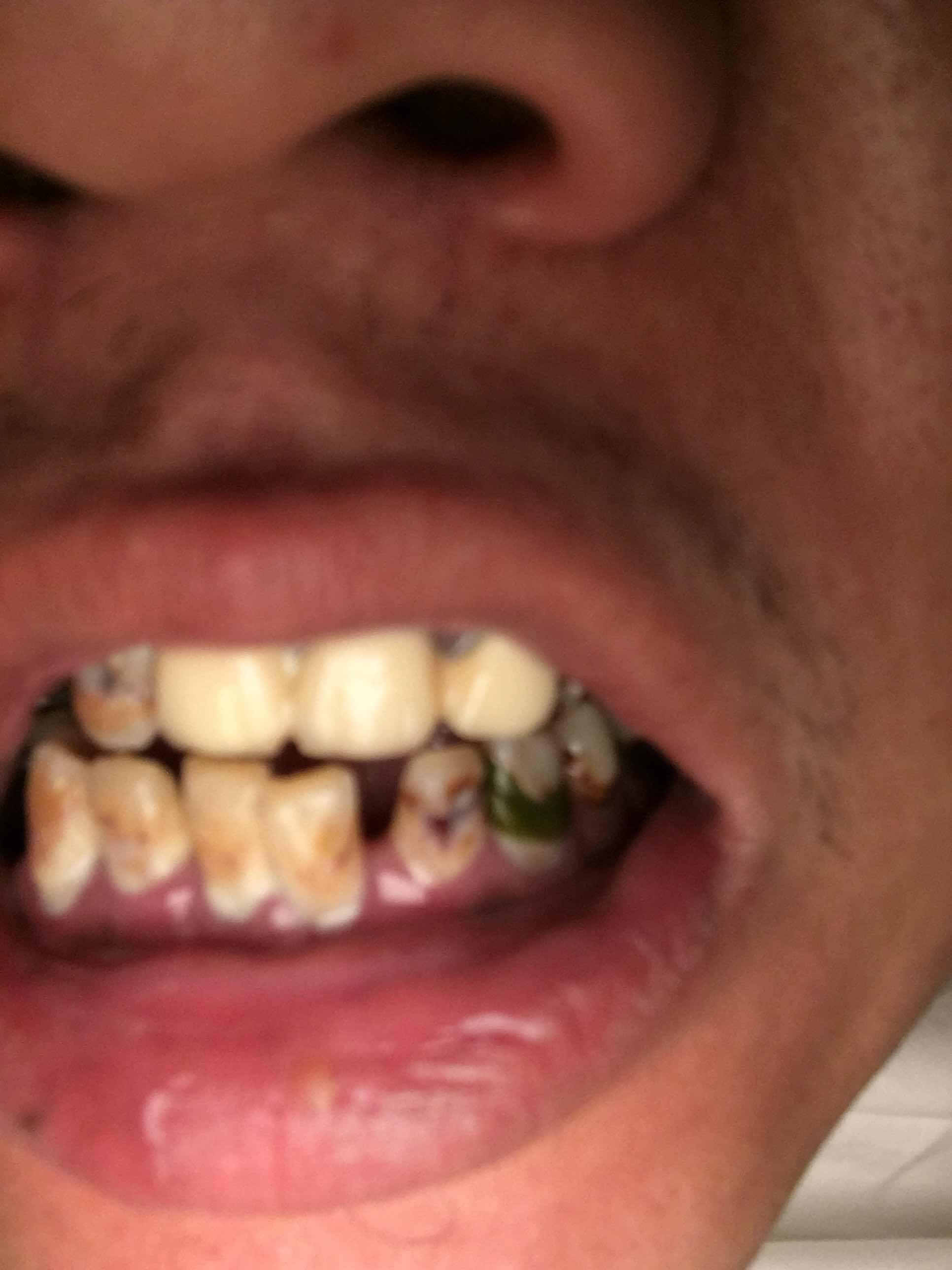 冷光美白牙齿多少钱,这牙怎么整?有救吗