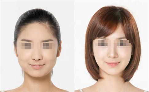 瘦脸手术原理是什么?以前肉嘟嘟的脸蛋现在变小啦