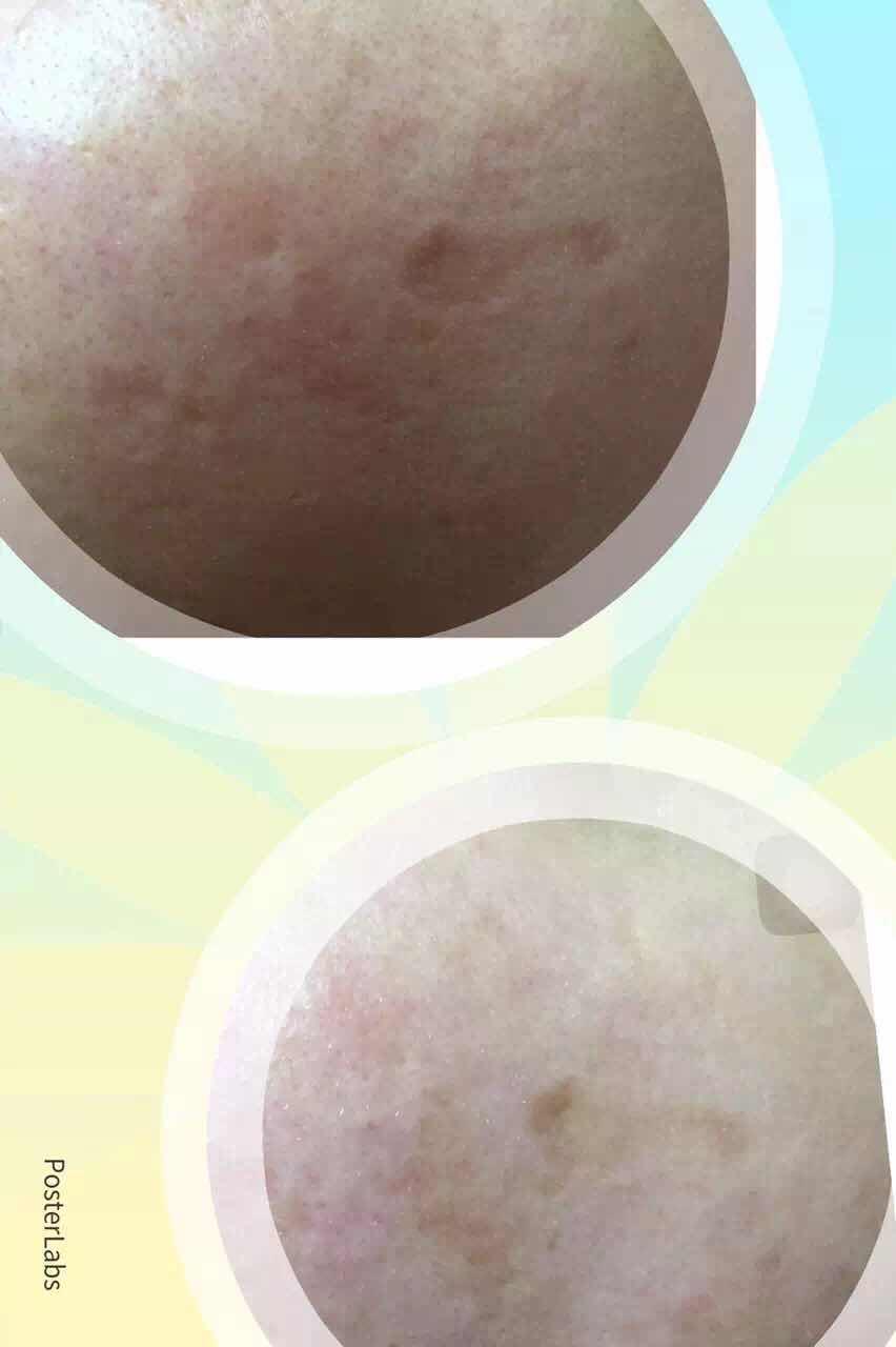 干细胞美容修复怎么样,细胞修复后一次 痘疤下去了