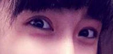 贴双眼皮胶的危害,从小我就很羡慕人家双眼皮的MM,为毛我就是个大眼皮呢?一直搞不懂。