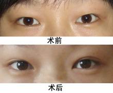 样去除眼袋最有效,由于年龄的原因或者经常熬夜,一些人年纪轻轻就有了眼袋。那么去眼袋良好最有效的方法是什么呢?