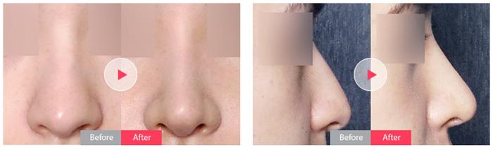 箭头鼻怎么形成的。韩国美佳整形医院箭头鼻手术 箭头鼻是指鼻尖过度下垂,形成箭头状的鼻形。正常支撑鼻孔的软骨由于生长过度,鼻尖过于下垂使面容显得不协调,给人留下显老等负面印象。