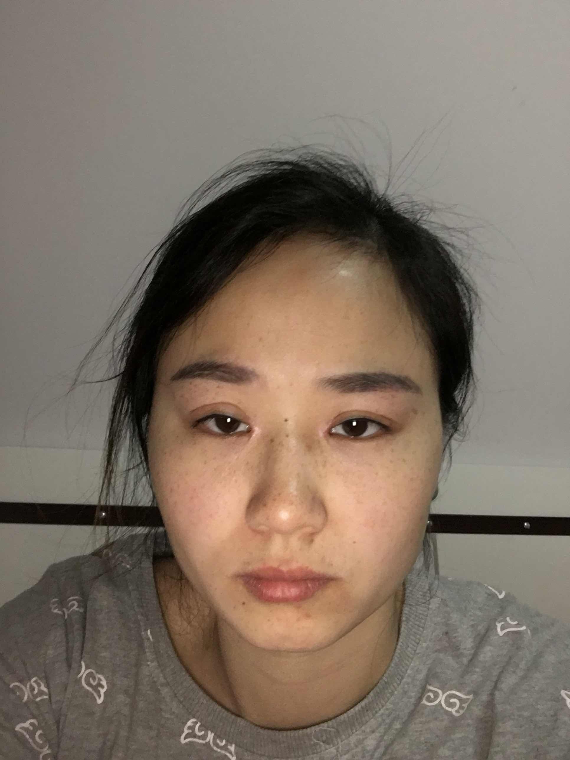 面部拉皮去皱整容靠谱吗?能填平面部的泪沟和鼻唇沟吗?