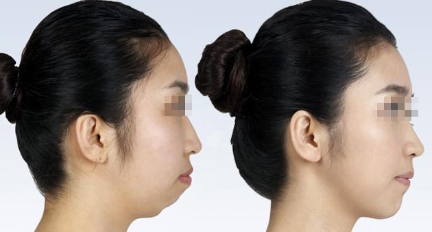 玻尿酸丰下巴多久可以注射第二次。做了玻尿酸丰下巴后,变得比以前漂亮多了