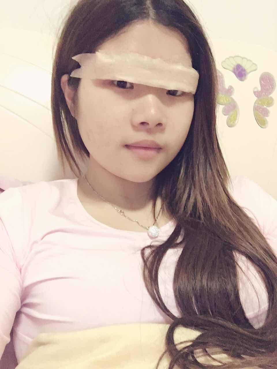 双眼皮术后睁眼练习怎么做,刚做完双眼皮手术8个小时