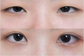 做双眼皮会影响视力吗,以前眼睛老不自然,感觉忒TM别扭,丑死了,于是就下决心做了双眼皮手术