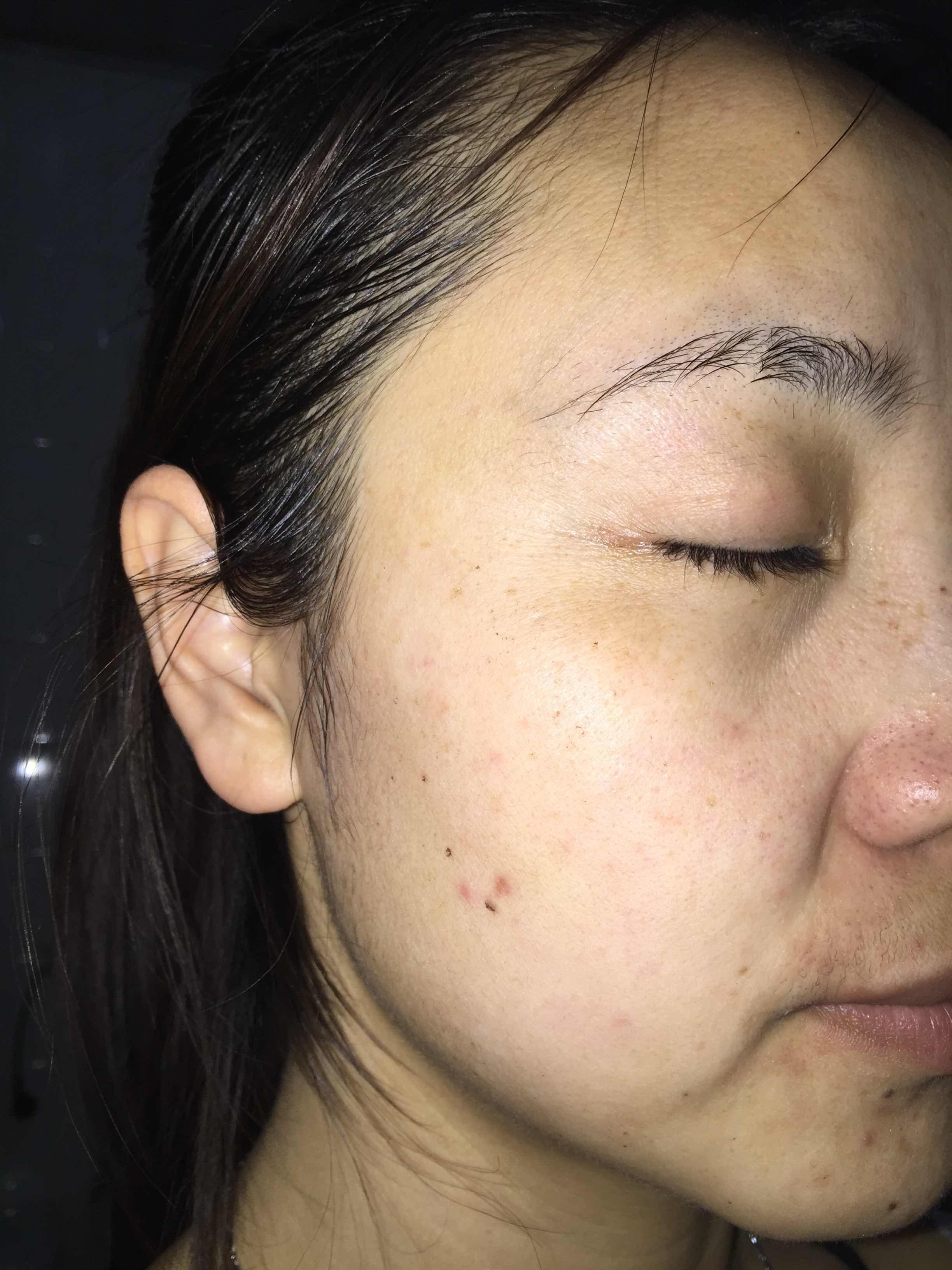 激光去黑点会留疤吗,一周洗脸之后,脸上大部分明显的黑点都掉了,留下了小黑印,没有以前明显
