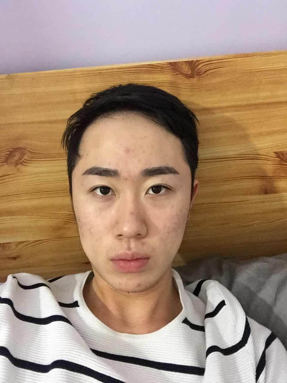 面部黑斑是怎么形成的,用什么方法去除好呢,我需要做哪些