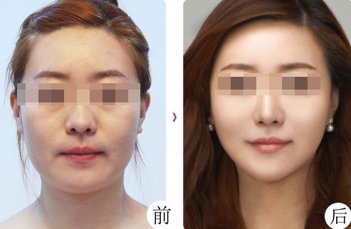 面部紧致提升的方法有哪些,面部紧致提升案例分享