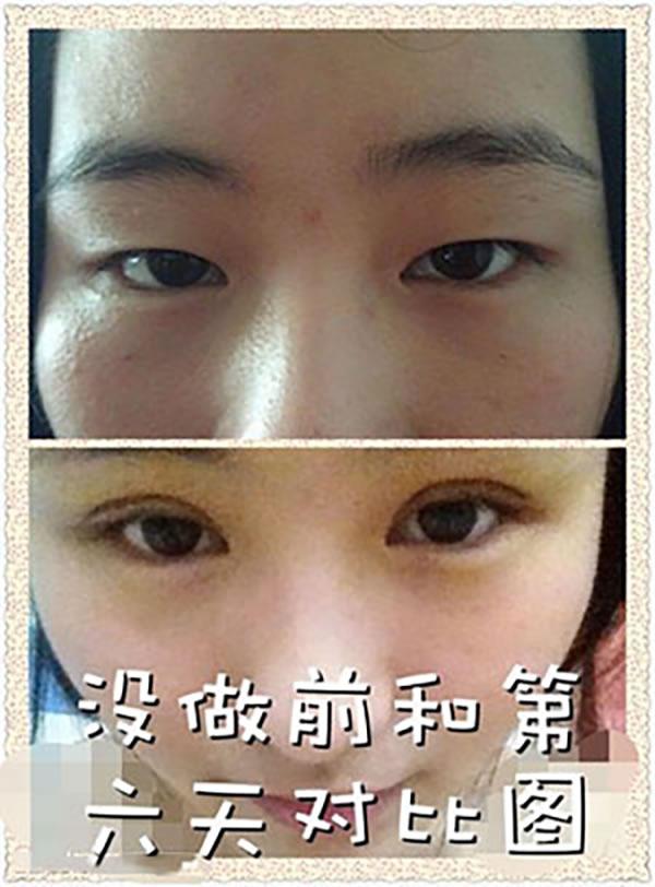全切双眼皮做了一个月后的前后变化效果案例图,再也不是肿眼泡了