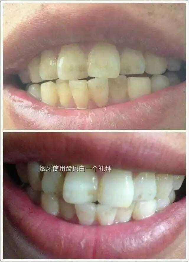 牙齿黄了怎么变白,洗牙的方法能把牙齿洗白吗?