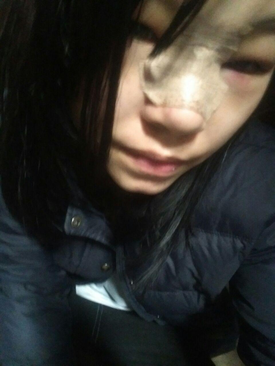 隆鼻后眼睛肿了怎么办,怎么办好肿啊,怎么能快点消肿