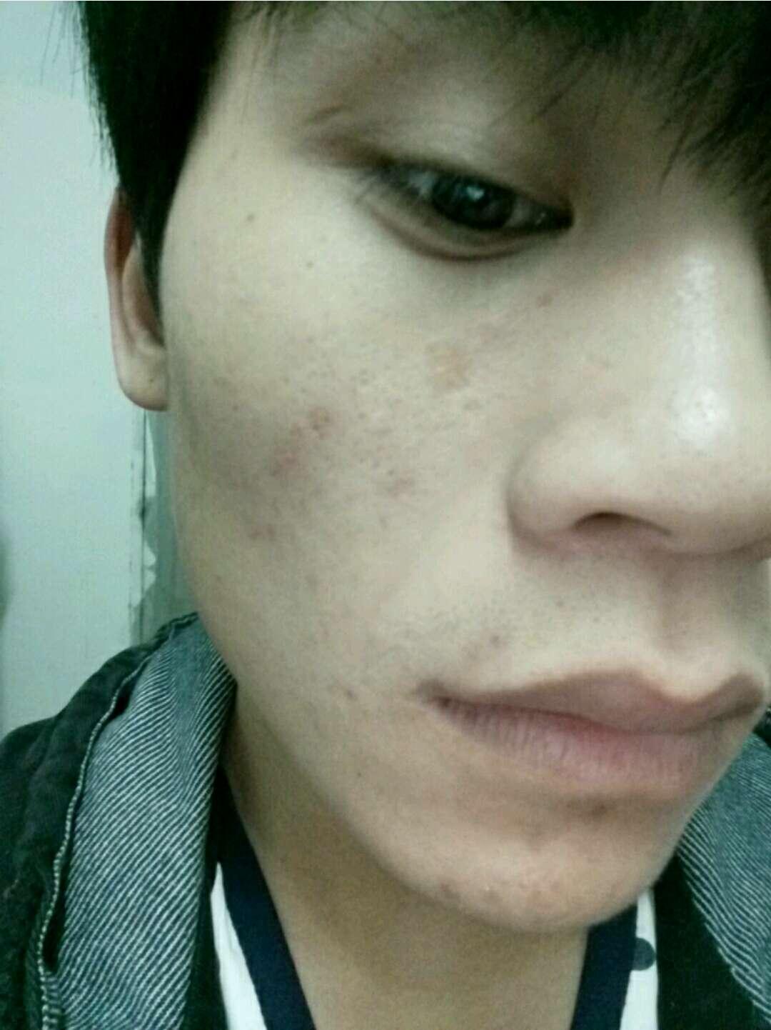 祛痣留疤怎么办,我脸上的疤痕是以前酸腐蚀去痣留下的,有五年了,能去掉么?