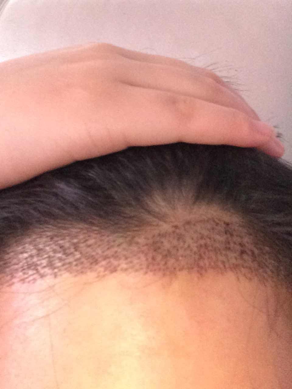 毛发移植多长时间能长出来,最近做的发际线移植,效果还可以吧