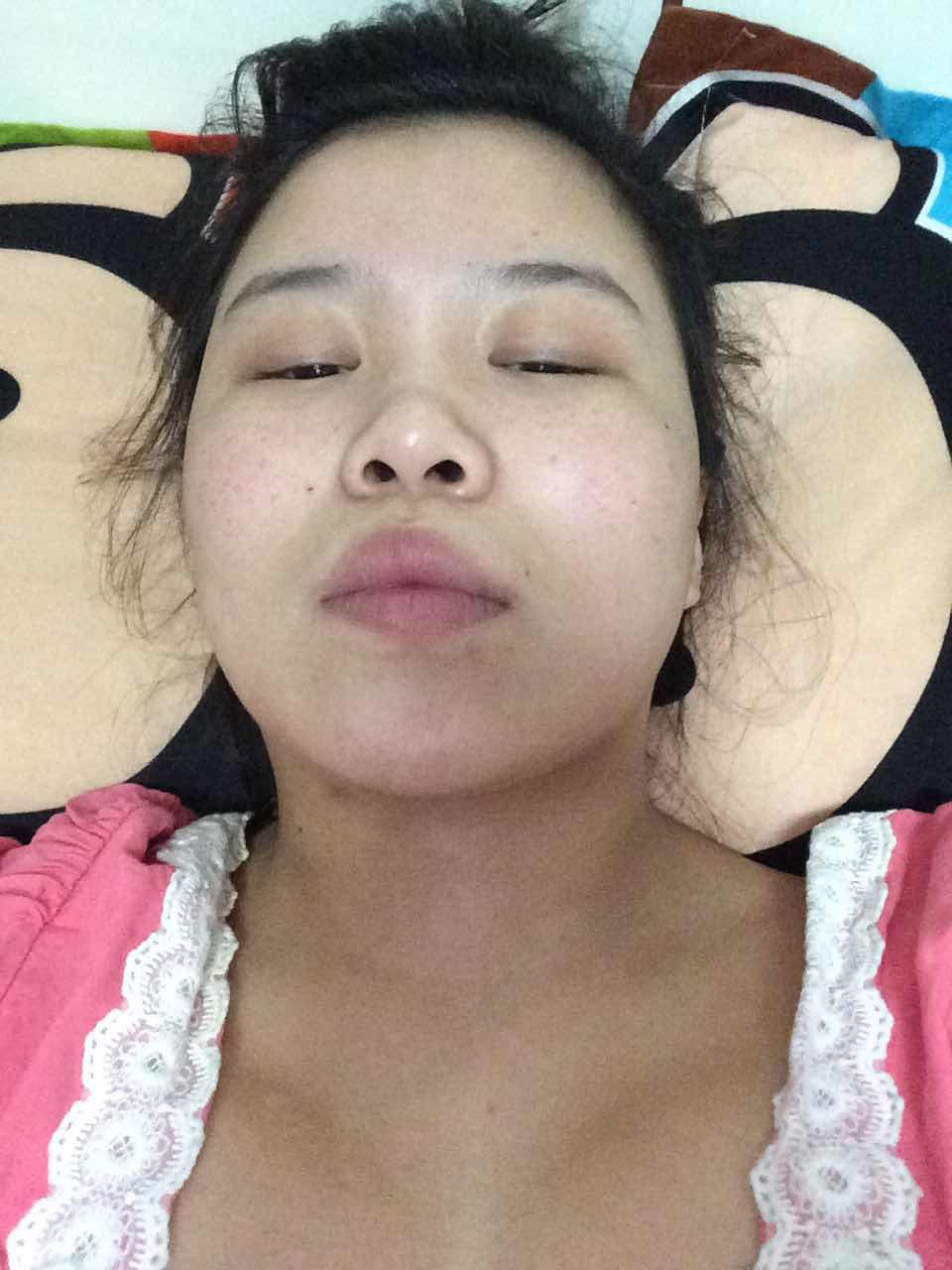 驼峰鼻矫正隆鼻术多少钱,我这个要怎么改变