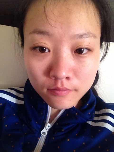 鼻小柱延长方法是什么,我想整个鼻子和瘦个脸这样是不是就没那么丑了