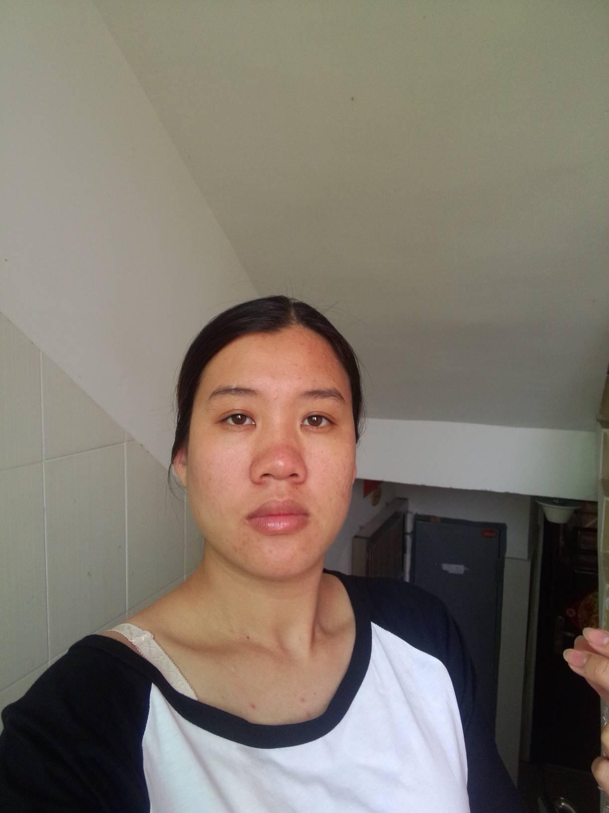 脸部不对称怎么矫正,可以模拟吗?我需要怎么改变?
