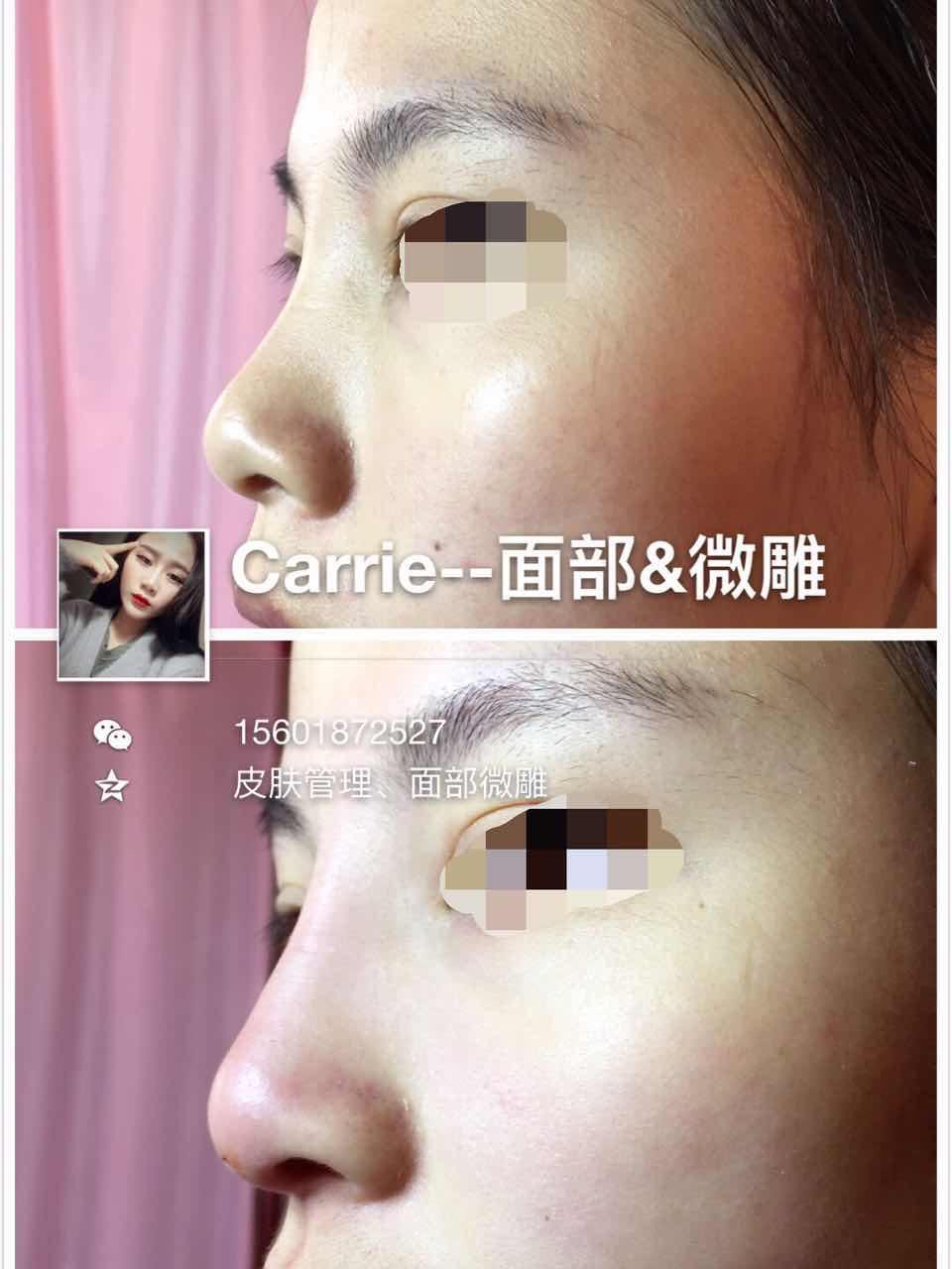 微雕隆鼻危害,她的鼻子有点宽现在拉高点就立体了不宽了,鼻小柱出来拉长鼻型