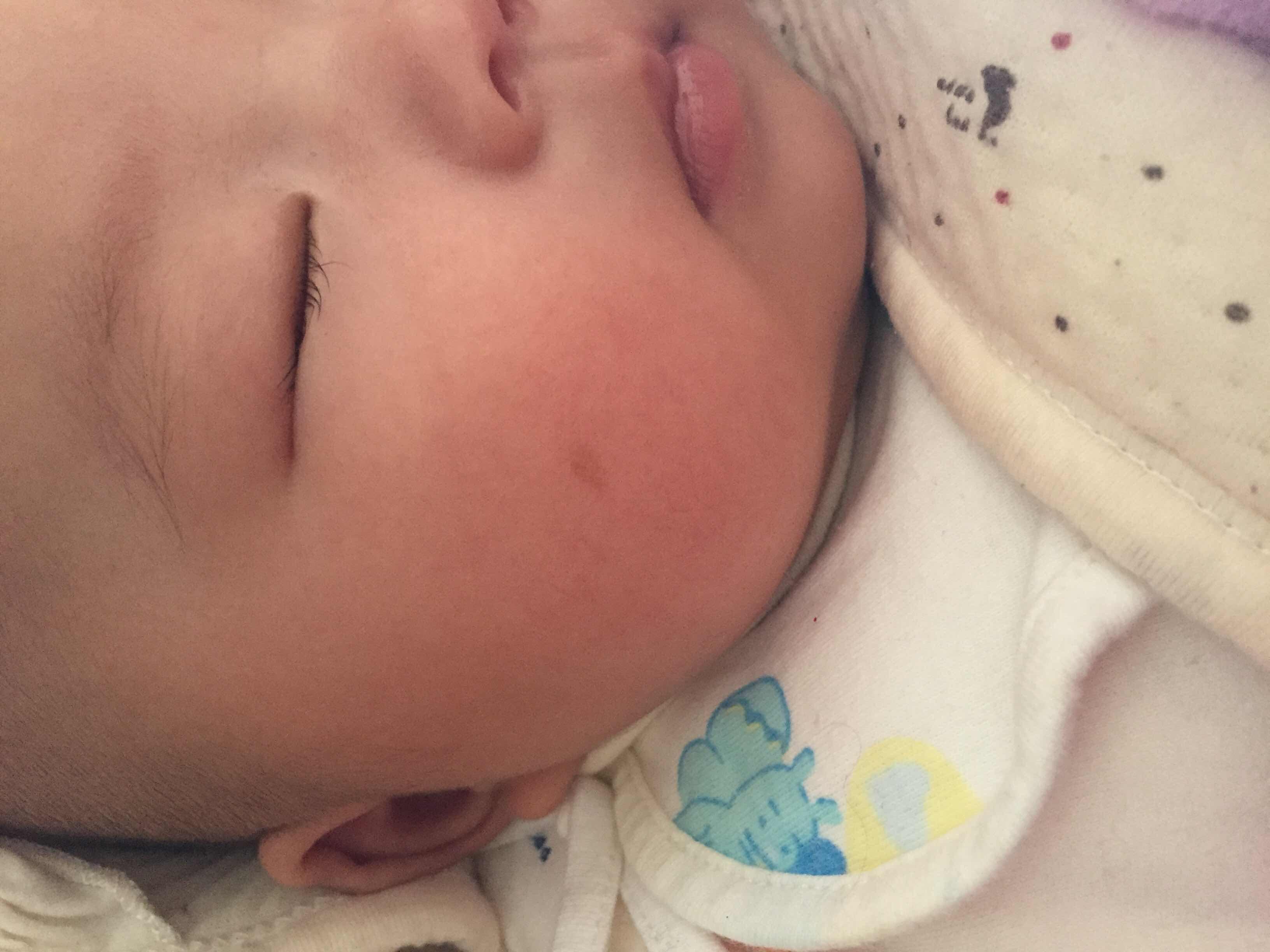 胎记需要去除吗,宝宝脸颊那里长了一个灰色的类似于胎记的东西吧,想咨询一下能不能治疗去除