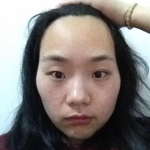 颧骨宽怎么瘦脸,脸大,丰太阳穴会不会显得脸更大?还想割双眼皮,那种双眼皮比较适合我?瘦脸要不要做呢?