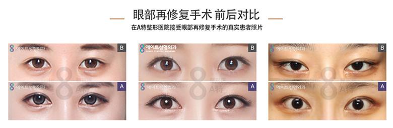 韩国眼部修复专家,为了眼睛变得更大变美而去接受眼部手术,但是手术结果却不尽人意,有这样烦恼的人并不是个例!