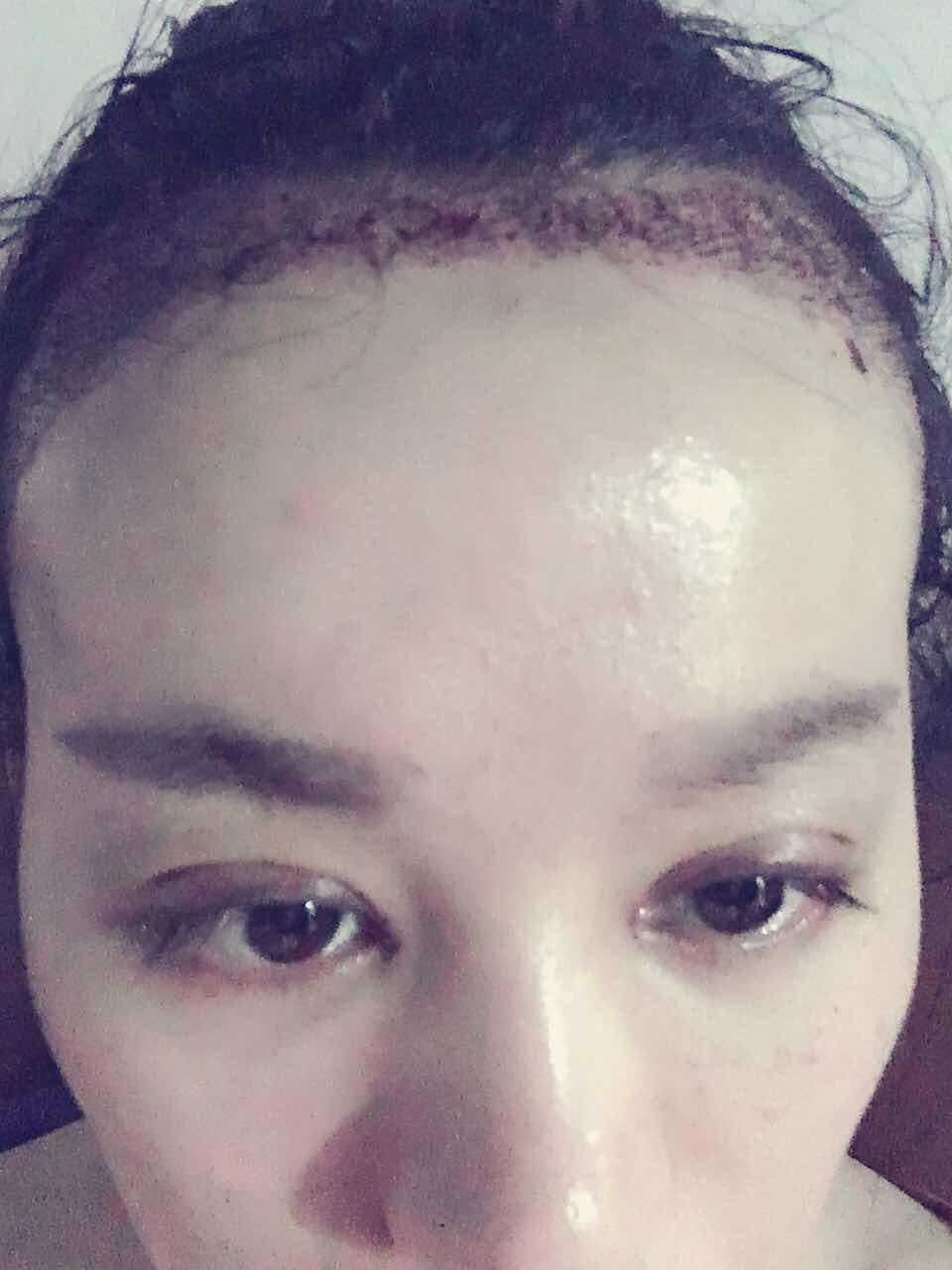 发际线移植后多长时间长头发,毛发移植后应该怎么做护理好呢