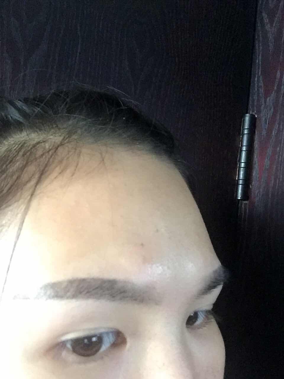 眉骨突出怎么办,眉骨真的好突啊,想做丰额头和双眼皮,好自卑呀,在韩国做的宝宝,能提供下参考价吗