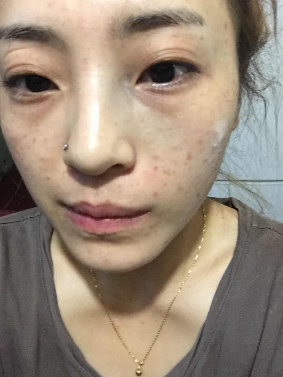 太田痣怎么去除,我脸上有个太田志有没有什么办法可以一次去除