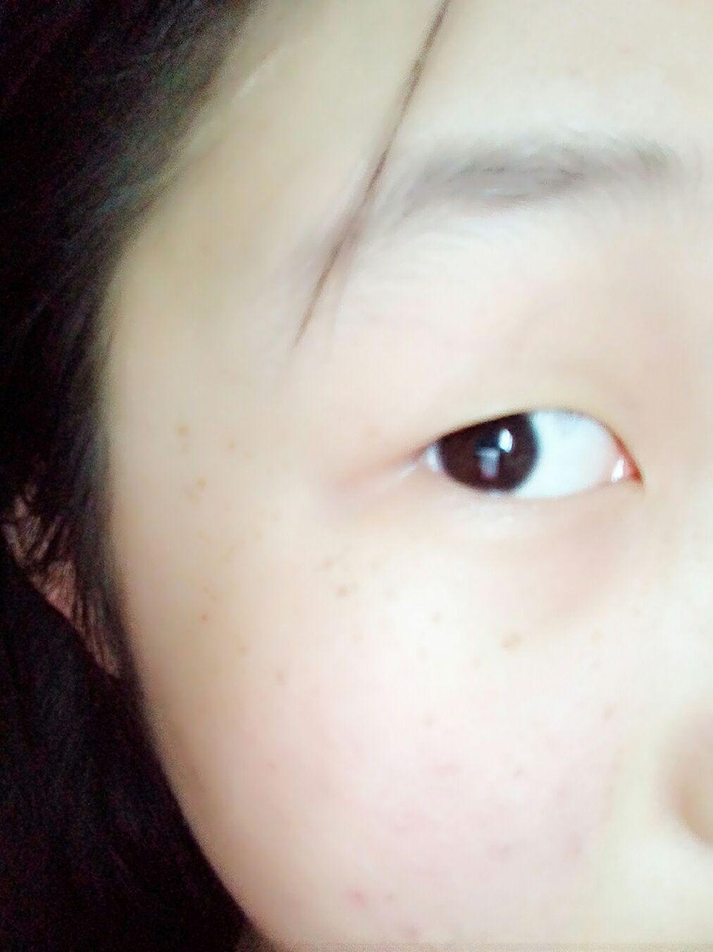开眼角有什么好处,我的眼睛可以开眼角吗?