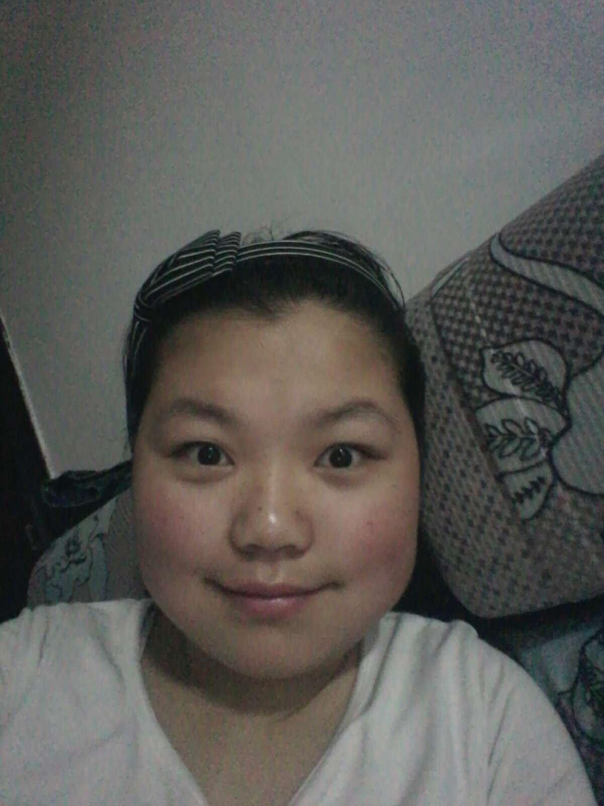 面部吸脂瘦脸会不会疼,怎么减肥,除了吸脂还有什么办法