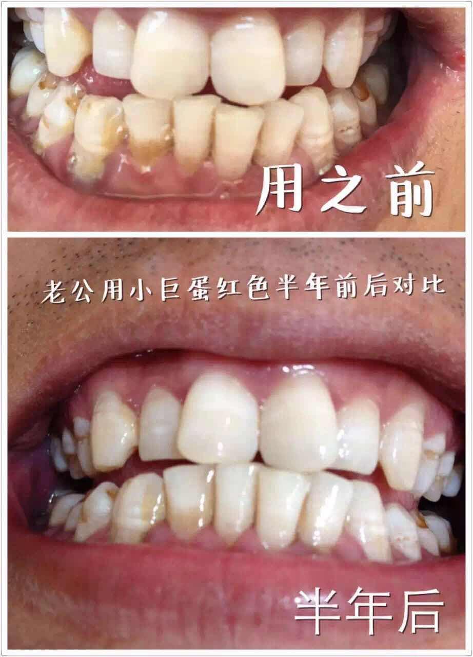 牙齿美白需要多久,买了这牙膏后省钱了比超市牙膏太多